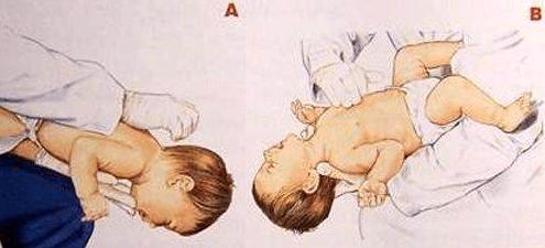 宝宝噎住了怎么办?宝宝噎住最有效的急救方法