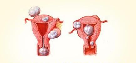 宫颈囊肿严重吗?宫颈囊肿需要治疗吗?