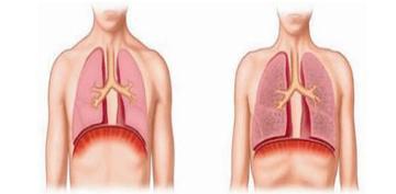 肺气肿有哪些症状?肺气肿可以治好吗?