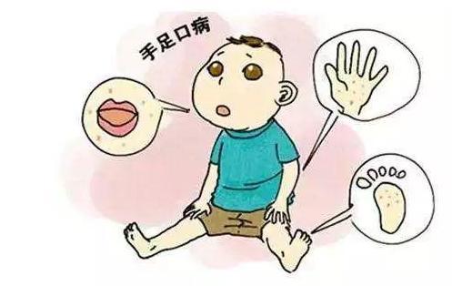 什么是手足口病?作为家长一定要知道的手足口病小知识