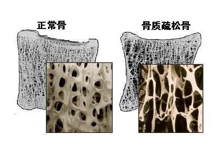 【健康小常识】骨质疏松怎么办?骨质疏松应该怎样预防?