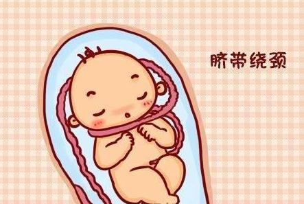 脐带绕颈怎么办?怎样才能防止胎儿脐带绕颈?