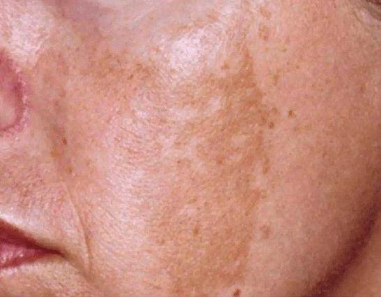 黄褐斑形成的原因是什么?治疗黄褐斑的方法有哪些?
