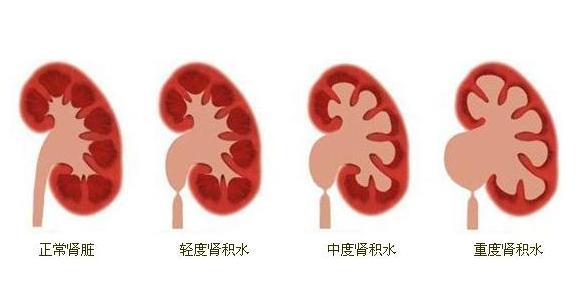 肾积水是什么?儿童肾积水是如何形成的?