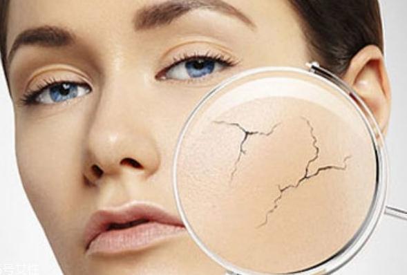 皮肤屏障到底是什么?皮肤屏障受损了该如何修复?