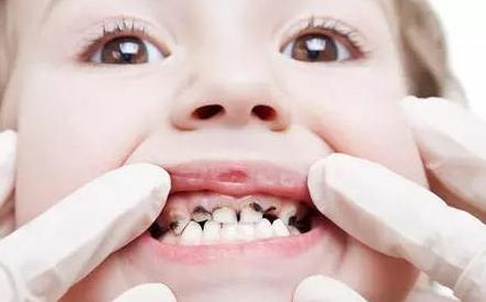 五岁小孩龋齿需要怎么治疗?小孩子的龋齿是怎么形成的呢?