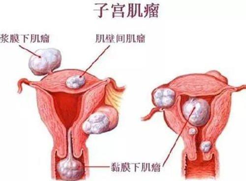 为何很多人会有子宫肌瘤?都有哪些原因呢?