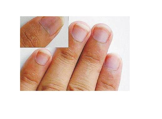 身体不好,指甲知道?指甲上展现出哪些表象,暗示体内有疾?