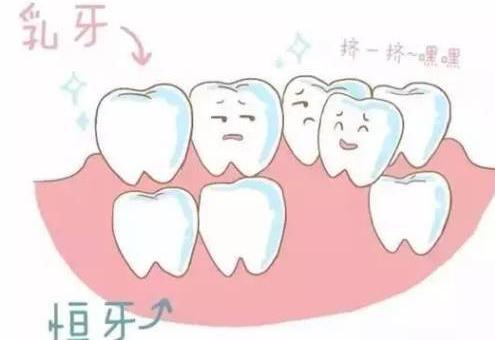 宝宝乳牙滞留怎么办 如何预防乳牙滞留