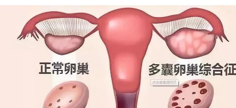 多囊对女性的危害,可能贯穿一生……